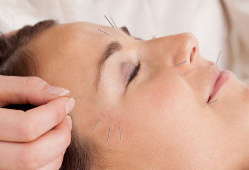 Cosmetic Acupuncture for Dark circles