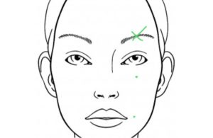 Cosmetic Acupuncture for eye bags